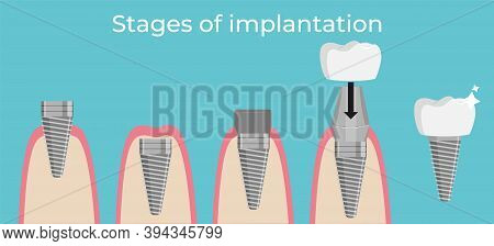 Stages Of Dental Implant Installation. Vector Illustration.
