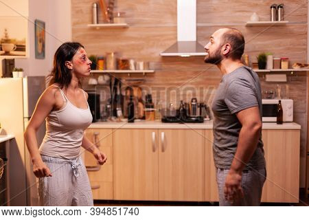Bruised Woman Yelling At Agressive Husband In Kitchen After Beating Her. Traumatised Helpless Terrif