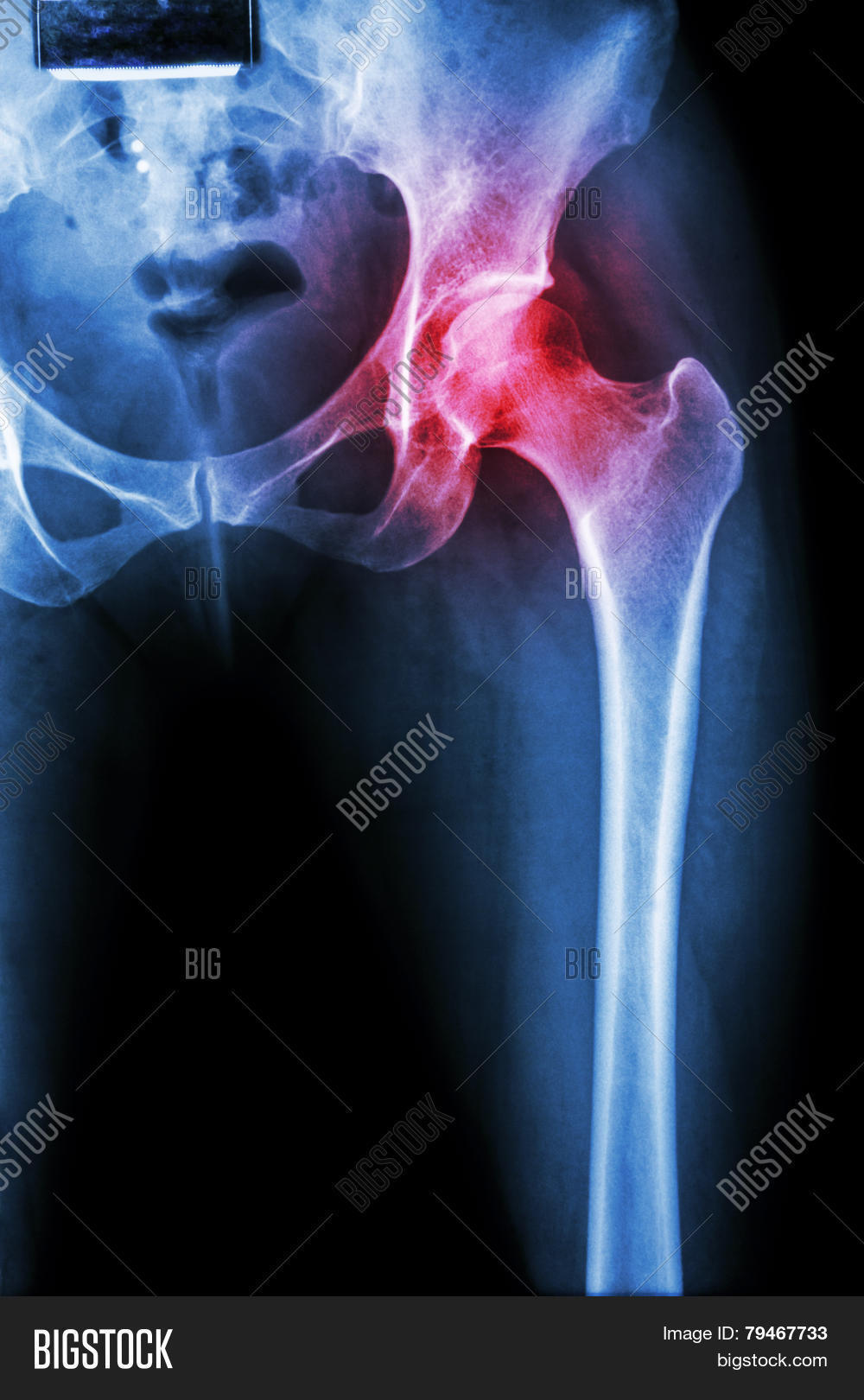 Arthritis hip joint pictures Best of Dallas 2017 Best Restaurants, Bars, Clubs