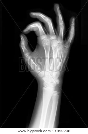 x rayed ok sign scanned with full detailes poster