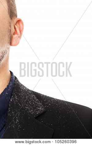 Close Up From A Man With A Dandruff Problem