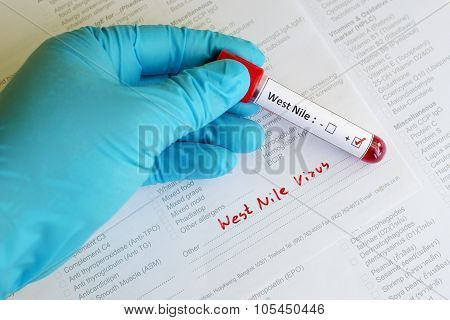 West Nile blood sample