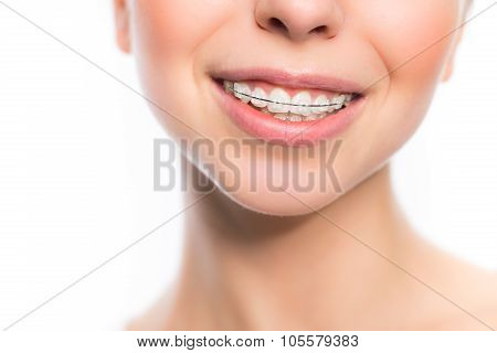 Woman mouth with teeth braces