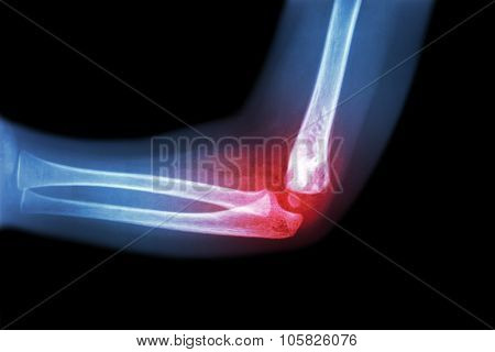 Rheumatoid Arthritis , Gouty Arthritis ( Film X-ray Child 's Elbow With Arthritis At Elbow )