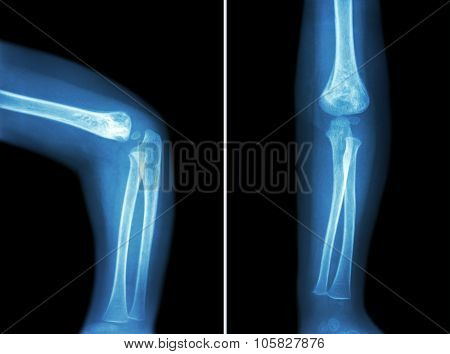 Film X-ray Of Child 's Elbow