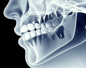 X-ray Image Of A Jaw With Teeth