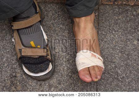 Damage on the foot of a pilgrim in Santo Domigo de la Calzada La Rioja Spain