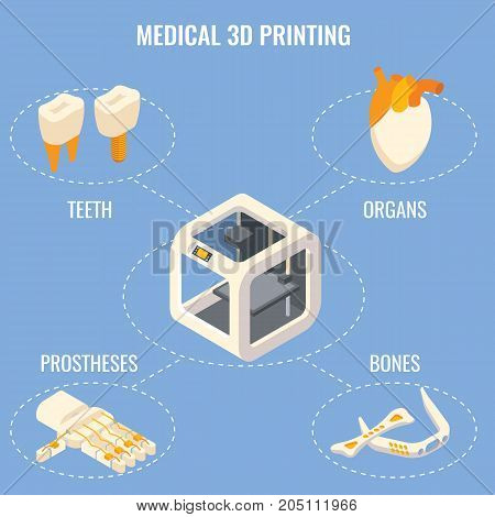 Medical 3d printing concept vector isometric illustration. Organ fabrication, creation of customized prosthetics and implants technology.