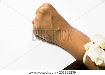 iv/Intravenous fluid/injection by doctor or nurse in clinic