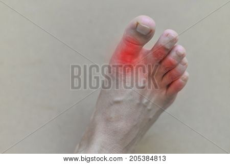 Foot of gout patient.Close up Painful and inflamed gout. poster