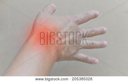 Painful And Inflamed Gout..