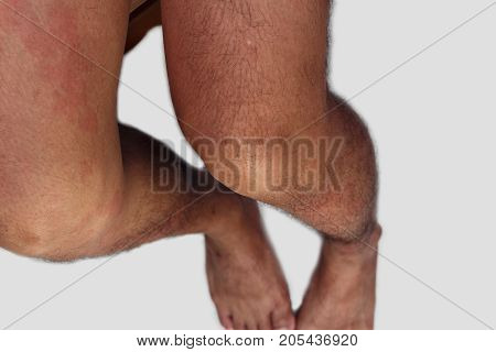 Leg area of man with dermatitis problem of rash allergy rash and Health problem