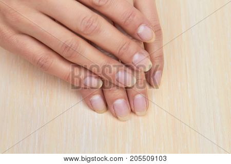 Female hands with not polished nails. Woman hands without gel on nails. Young woman hands before having manicure.