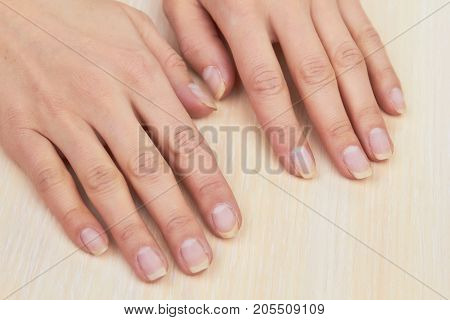 Woman hands after removing gel. Female hands ready for treatment and manicure on salon table. Skin therapy and nails care.