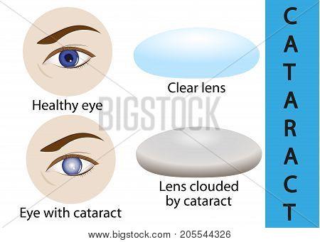 A cataract is an clouding crystalline lens inside the eye