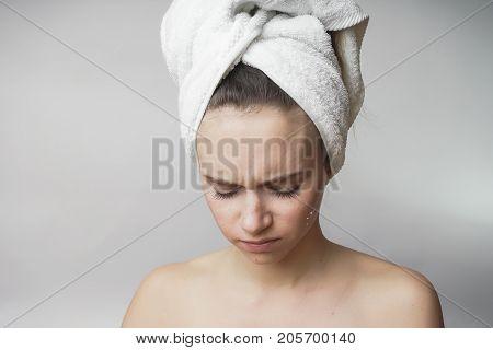 Sad woman in towel, problem skin face