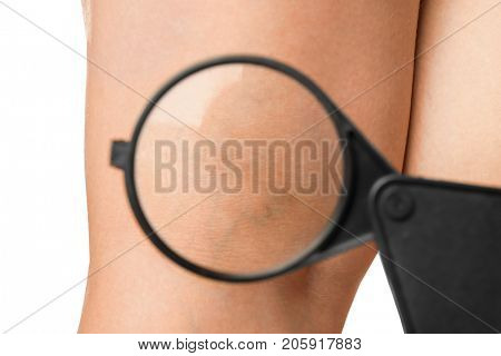 Woman's leg with varicose veins under magnifying glass on white background