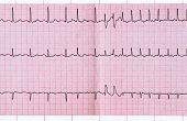 Emergency cardiology. ECG with supraventricular extrasystole and short paroxysm of atrial fibrillation poster