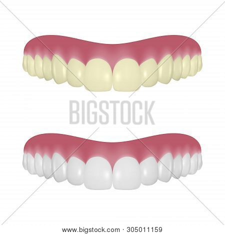 Vector 3d Realistic Render Denture Set Closeup Isolated On White Background. Dentistry And Orthodont