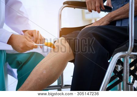 Doctor Checks The Patient's Reflexes. Neurologist Hammer For Knocking Knee Jerk, Medical Equipment F