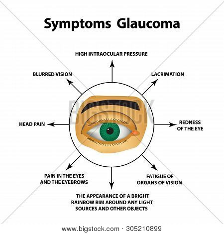 Symptoms Of Glaucoma. World Glaucoma Day. The Anatomical Structure Of The Eye. Infographics. Illustr