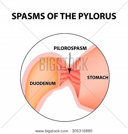spasms of the pylorus. Pylorospasm. Spastic and atonic. Pyloric sphincter of the stomach. Infographics. image on isolated background poster
