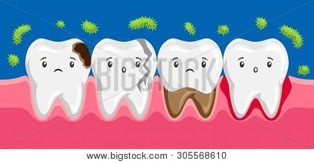 Illustration Of Sick Teeth In Oral Cavity. Children Dentistry Sad Characters. Kawaii Facial Expressi