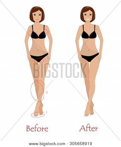 Woman Epilation Concept - Before And After Unwanted Hair Removing. Happy Girl After Armpit, Bikini,