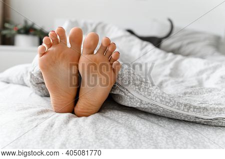 Beautiful Legs In Bed. Sexy Legs Of A Girl Lying In Bed. Feet Under The Blanket. Skin Problems On Th
