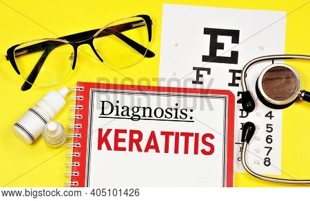 Keratitis Is An Inflammation Of The Cornea Of The Eye. Text Inscription Of The Ophthalmological Diag