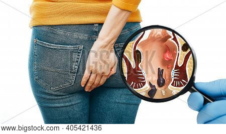 Doctors Hand With A Magnifying Shows The Pathologies Of Rectum And Hemorrhoids. Woman With Hemorrhoi