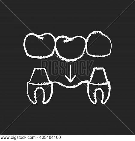 Dental Prosthetics Chalk White Icon On Black Background. Implant Design. Instruments For Dental Trea
