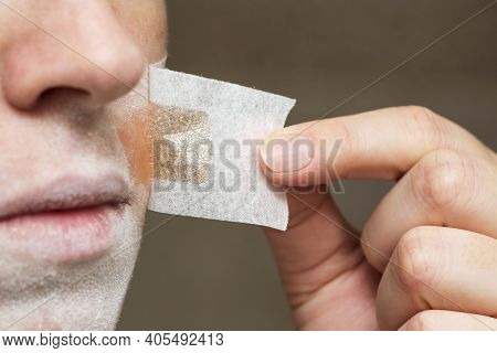 Depilation Excess Hair Over The Lips, A Woman Applied A Special Patch With Wax To The Mustache. Hair