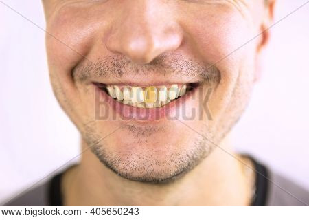 Yellow Damaged Tooth Of A Smiling Caucasian Man In Close-up. Focus On The Teeth. Dental Problems, De