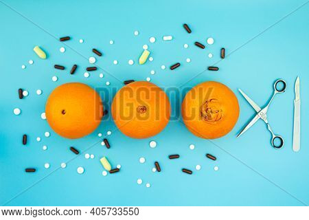 Oranges With A Large Navel, Pills, Scalpel And Scissors On A Blue Background. Concept Of Different S