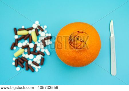 Oranges With A Large Navel, Pills, Scalpel On A Blue Background. Concept Of Medical Or Surgical Trea