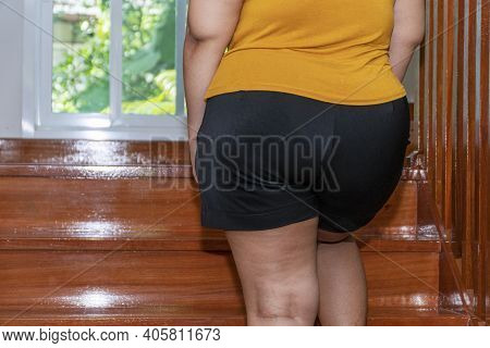 Unhealthy Oversized Problem Concept. Back Of Obesity Fat Young Woman Walking Upstairs In The Home. C