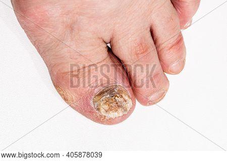 Sore Toenail, Nail Fungus Close Up.sick Nail On The Foot. Toenail Fungus On White Background.
