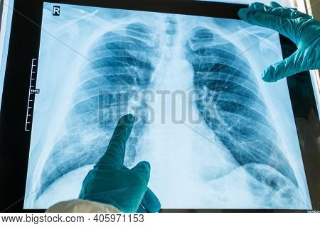 Coronavirus Pneumonia Concept. Radiography X-ray Film Of Human Chest Lungs