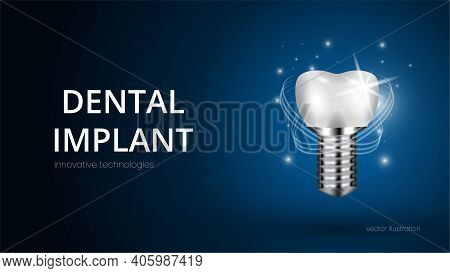 Realistic White Dental Implant On A Blue Background With Text. Vector 3d Model Of A Tooth With Carvi