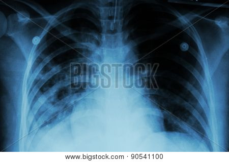 Pulmonary Tuberculosis ( Tb )  :  Chest X-ray Show Alveolar Infiltration At Both Lung Due To Mycobac