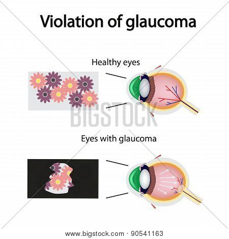 The structure of the eye. Blurred vision in glaucoma. As the eye can see the affected with glaucoma