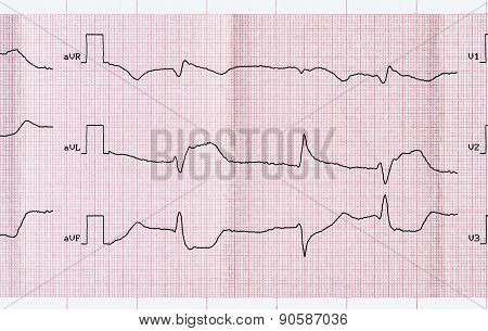 Ecg With Acute Period Macrofocal Myocardial Infarction And Ventricular Premature Beats