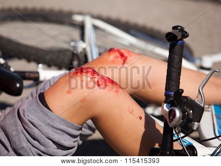Bicycle fall