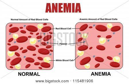 Anemia Diagram
