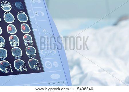 Medical Scan Of Human Brain Injury
