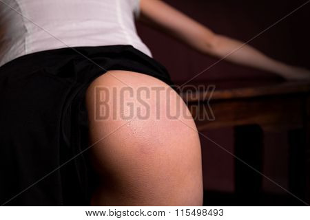 Female Butt With Spanking Mark