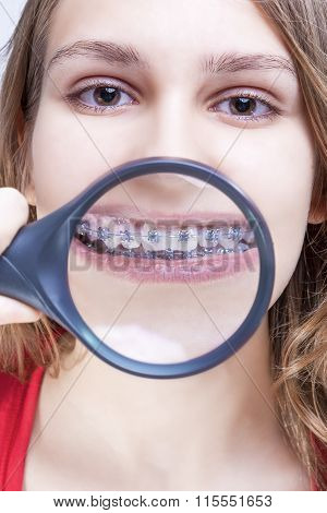 Dental Health And Hygiene Concepts. Caucasian Female Demonstrating Her Teeth With Brackets Through M