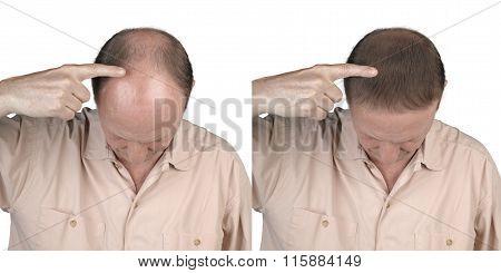 Human Hair Loss - Adult Man Hand Pointing His Bald Head
