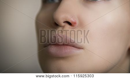 Herpes On The Nose - Young Woman With Herpes On Her Nose